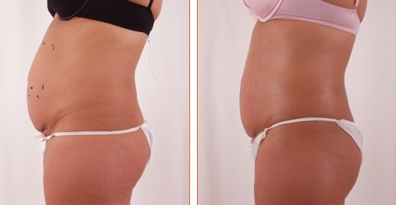 Exilis Tummy Before and After lady