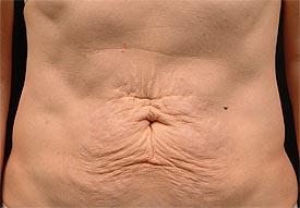 before tummy