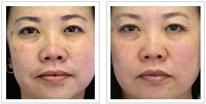 Lumixyl Skin-Brightening Before & After
